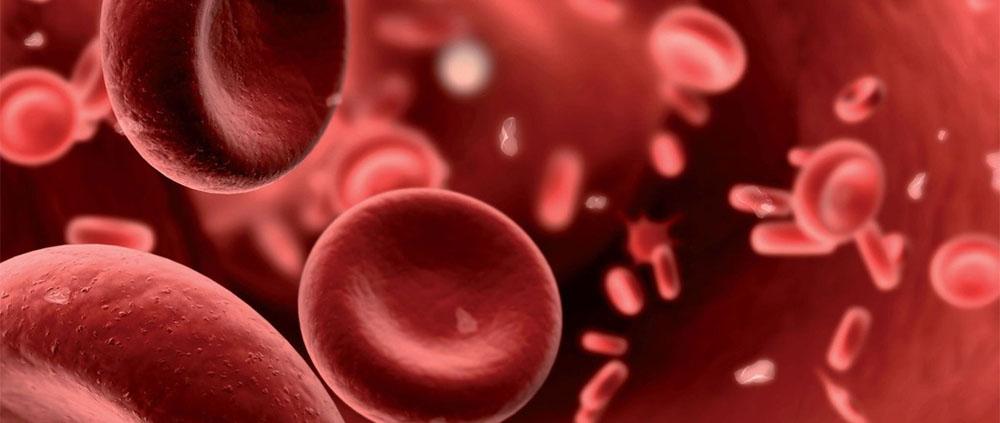 Trombofilia ereditaria: diagnosi molecolare su pannelli da 6 e 12 mutazioni genetiche