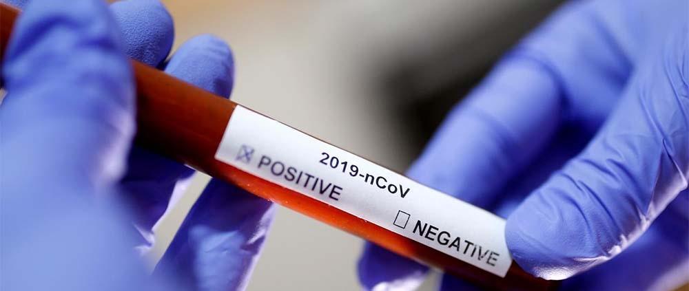 Cab Test Covid19 Coronavirus