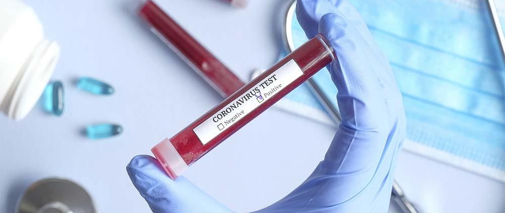 Test Covid-19 con Maglumi Laboratorio Taormina Centro Analisi Biomediche